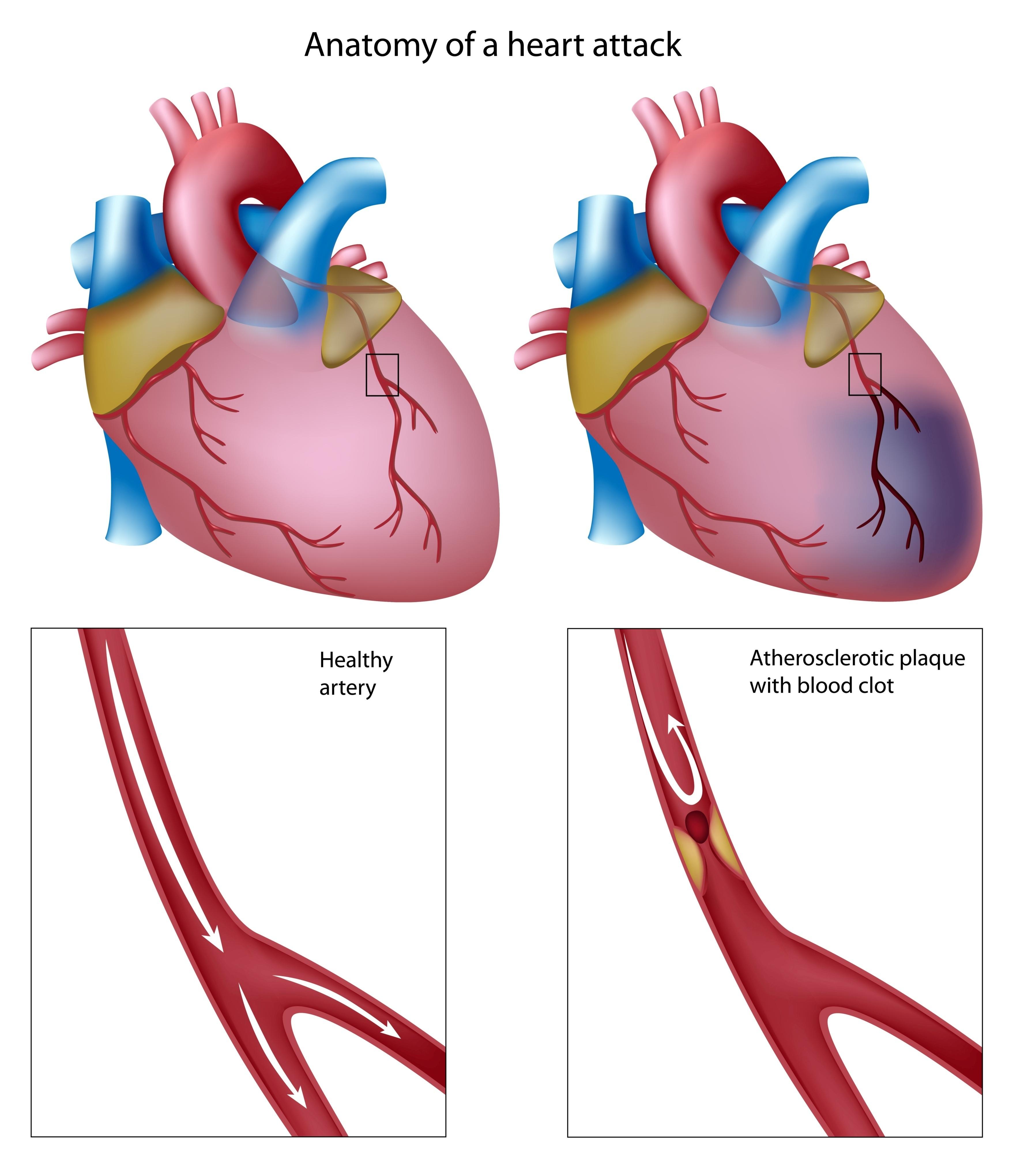 3559x4000 Heart Attack Body Systems Clip Art Cliparts
