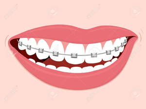 300x225 Smiles With Braces Clipart Free Images