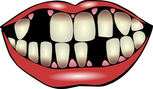 640x374 Tooth Gap Clipart Amp Tooth Gap Clip Art Images