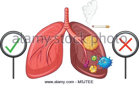 450x277 Diagram Showing Lungs With Disease Illustration Stock Vector Art