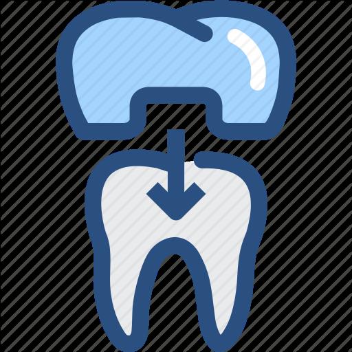 Dental, Dental Crown, Dental Treatment, Dentist, Dentistry, Teeth