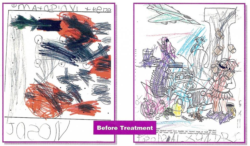 Adhd Drawing at GetDrawingscom Free for personal use Adhd Drawing