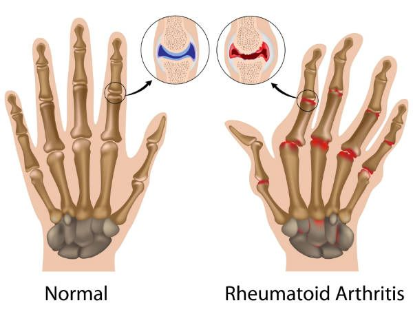 600x456 Arthritic Hands Drawing Home Remedies Hand Drawn