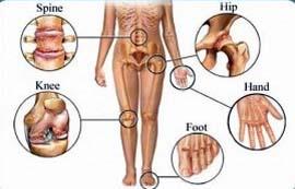 270x173 Arthritis