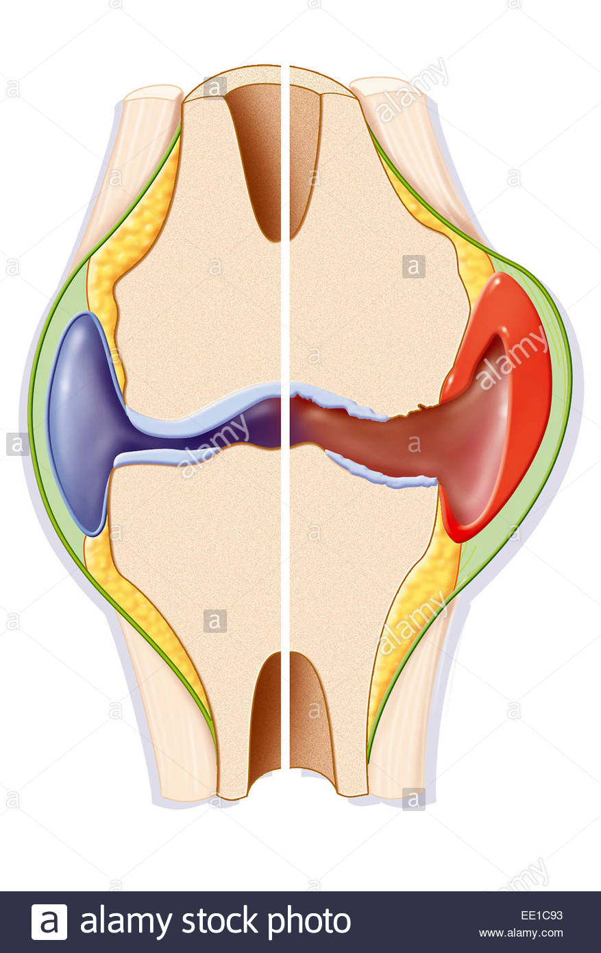 877x1390 Rheumatoid Arthritis, Drawing Stock Photo 77478271