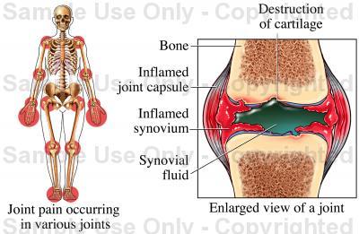 400x261 Rheumatoid Arthritis
