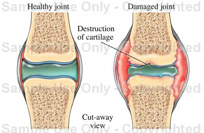 400x261 Synovial Joint Showing Arthritis