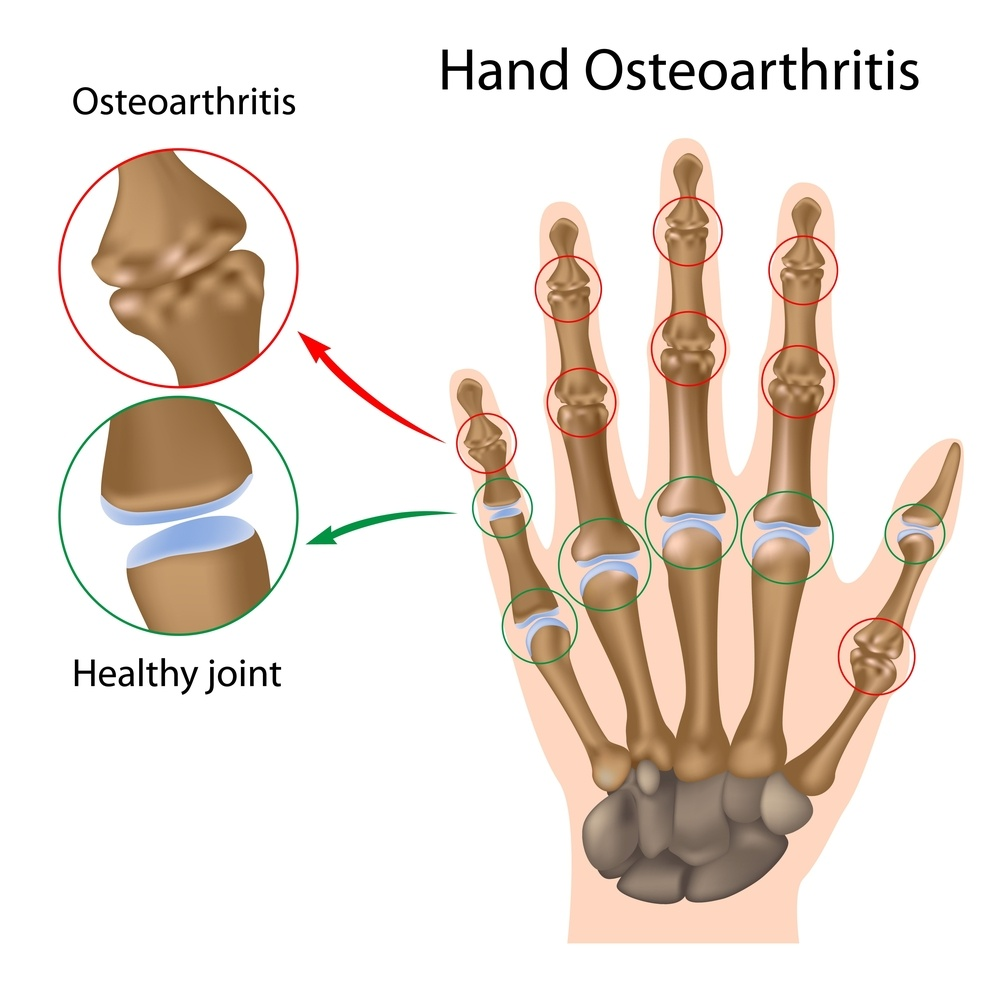 985x1000 What Is Osteoarthritis Signs, Symptoms, And Causes