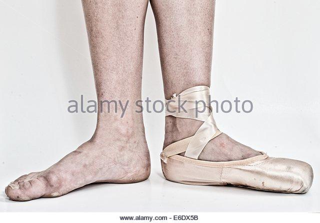 640x447 Calluses Feet Stock Photos Amp Calluses Feet Stock Images