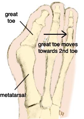274x387 Advice On Foot Care Bunions Hallux Valgus