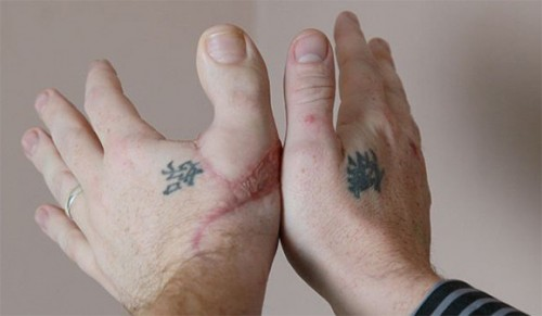 500x291 Big Toe Thumb