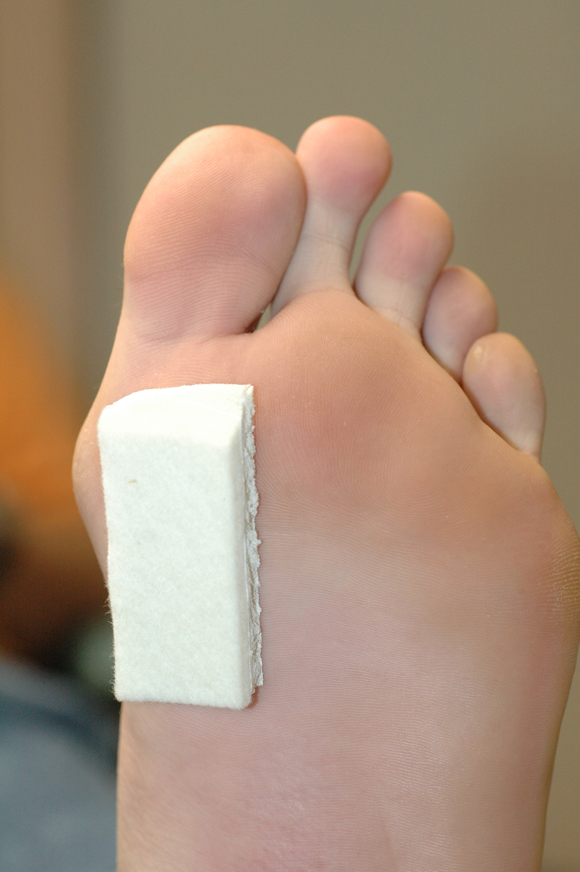 2000x3008 Morton's Toe What Is It, What Causes It, How To Treat It
