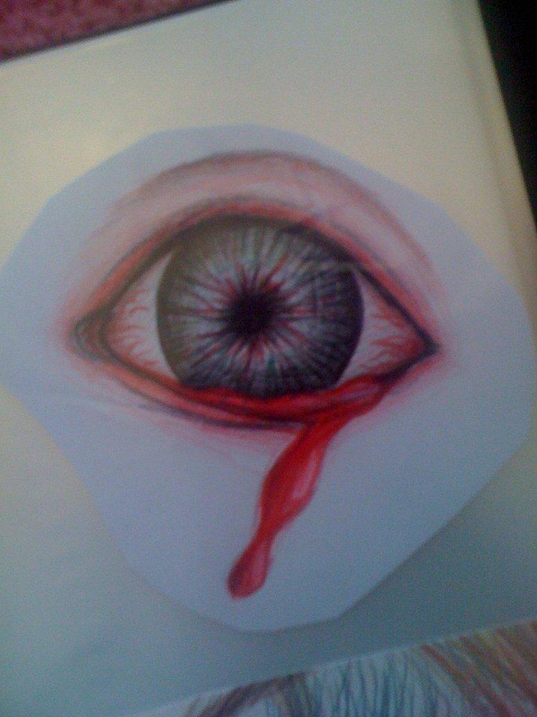 774x1032 Bleeding Eye By Pink Lady1993