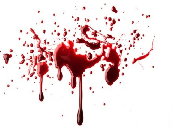 728x546 Blood Spatter