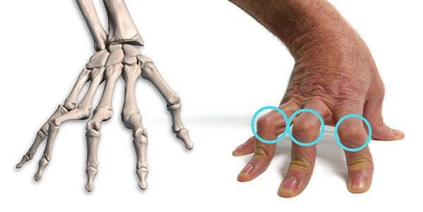 600x301 How To Draw Hands Muscle Anatomy Of The Hand Proko