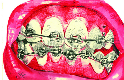 500x322 Art, Braces, Drawing, Lovely, Pink