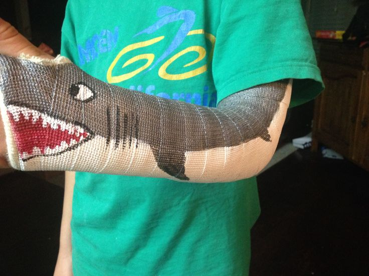 736x552 Image Result For Arm Cast Bryce's Wish List Arm
