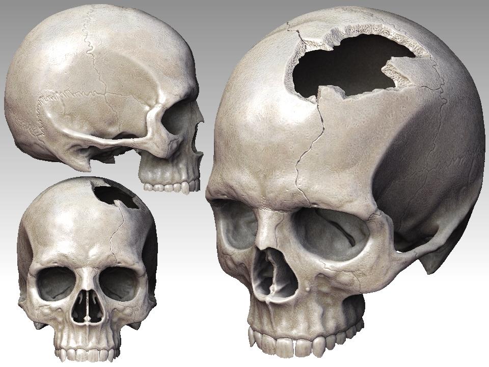 960x720 Broken Skull By Mx