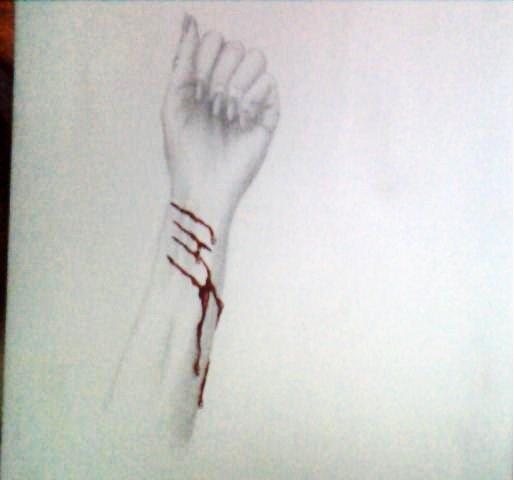 514x480 Bleeding Arm By Marilynmansondk