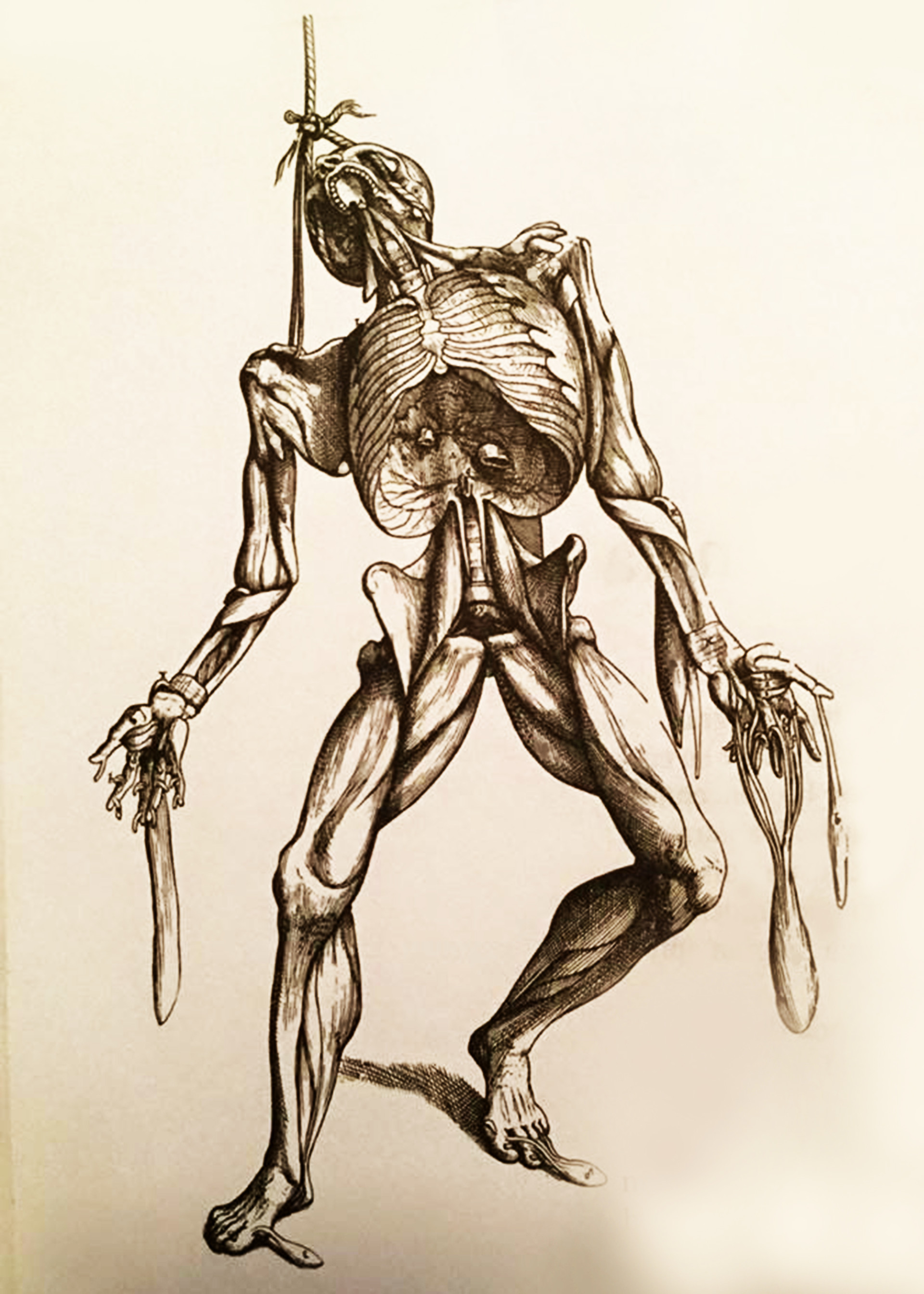 Dead body anatomy