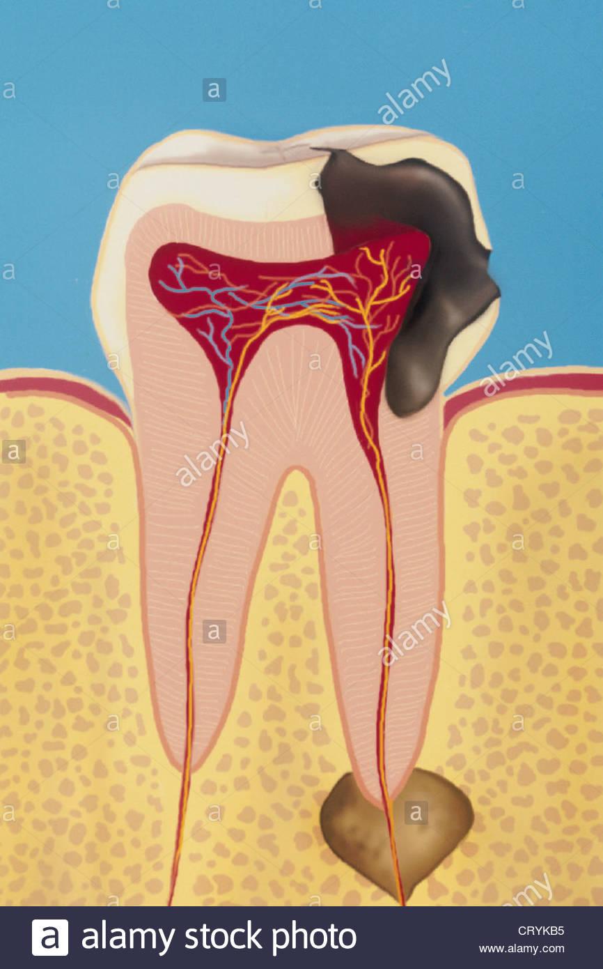 866x1390 Dental Abscess, Drawing Stock Photo 49165737