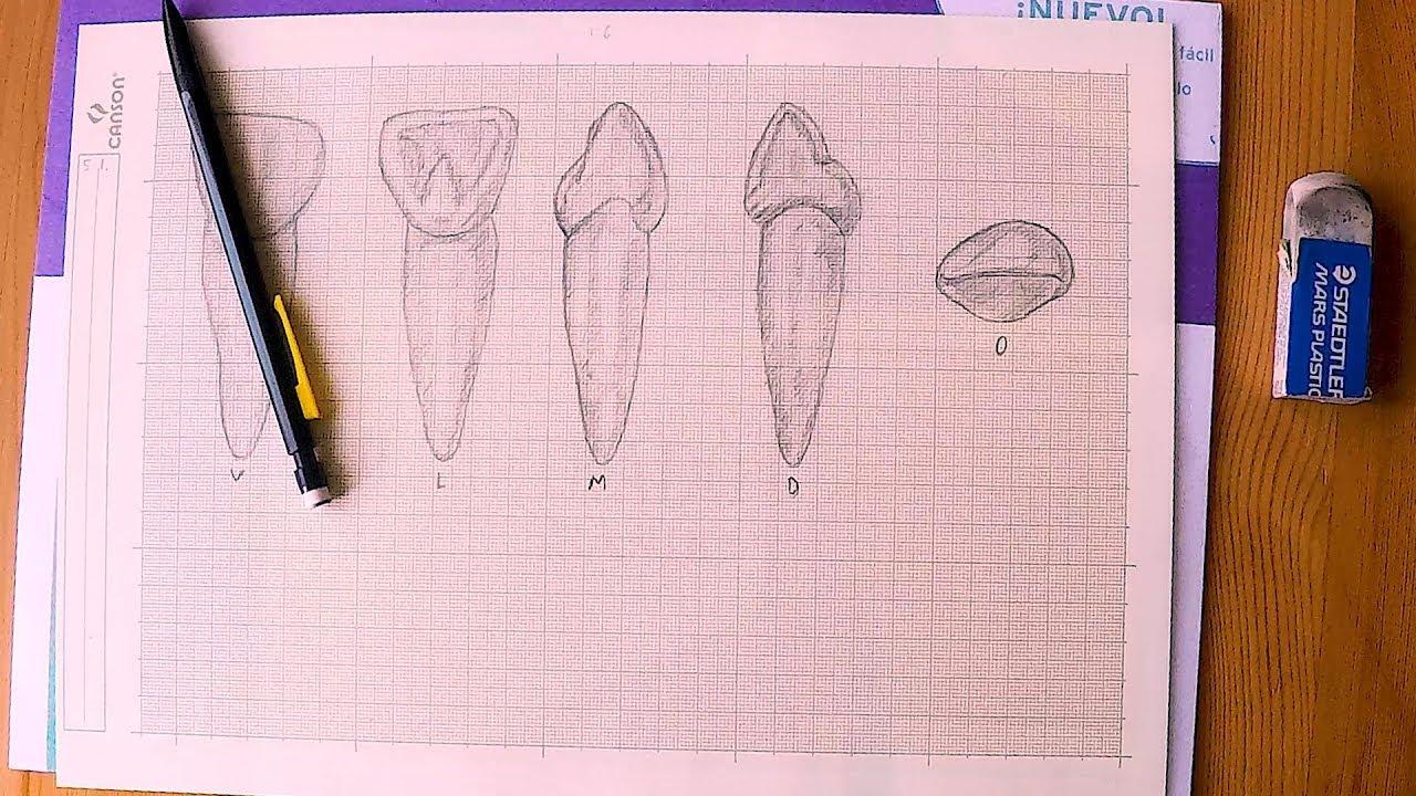 1280x720 Fdi 5.1. Haderup A . Anatomical Dental Drawing. Dibujo