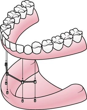 284x360 Implant Retained Dentures A Solution For Those With Lower Ridge