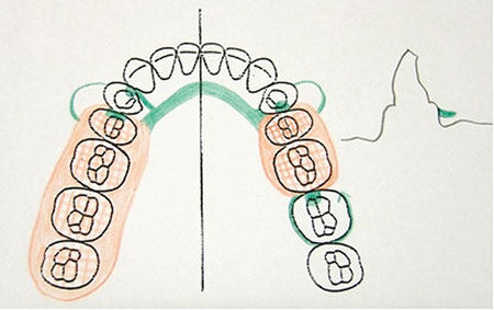 450x283 Dentalaka Clinical Stages In Removable Partial Denture Construction