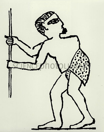 417x530 Pott's Disease In Egyptian Tomb Drawing