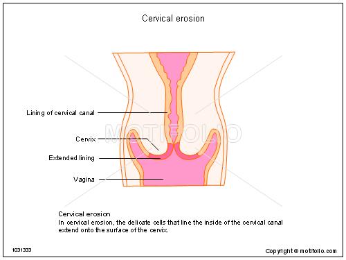 500x375 Cervical Erosion Illustrations