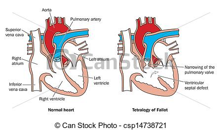 450x263 Congenital Heart Defect. Normal Heart And Congenital Birth
