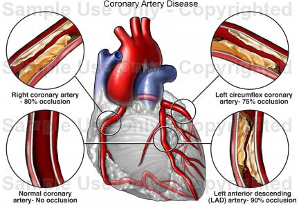 Anatomy Of Coronary Artery Disease Diagram Wiring Diagram