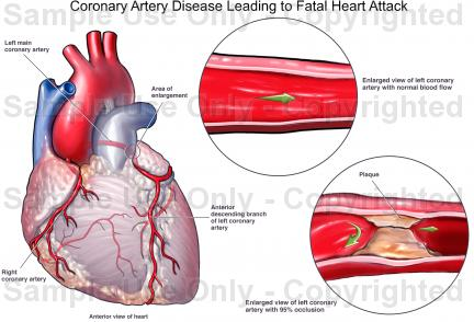 Heart disease drawing at getdrawings free for personal use 432x294 coronary artery disease leading to fatal heart attack ccuart Image collections