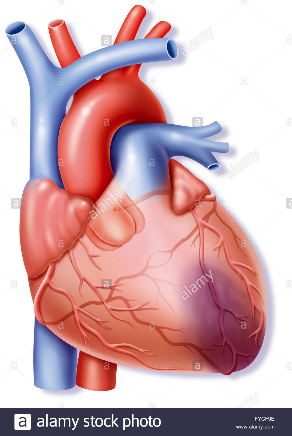 929x1390 Heart Attack, Drawing Stock Photo 102923002