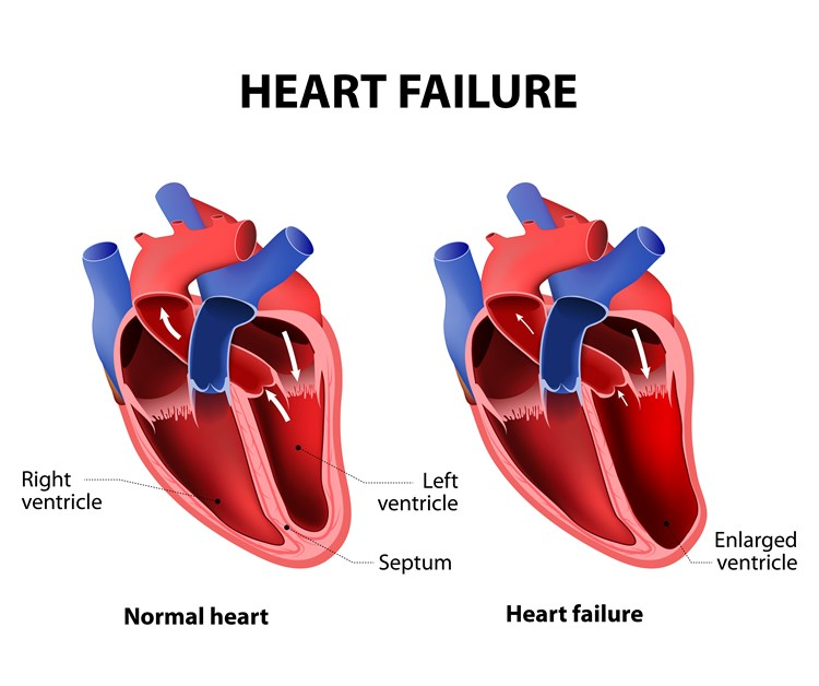 750x628 Heart Failure In The Elderly Overview Of Heart Failure