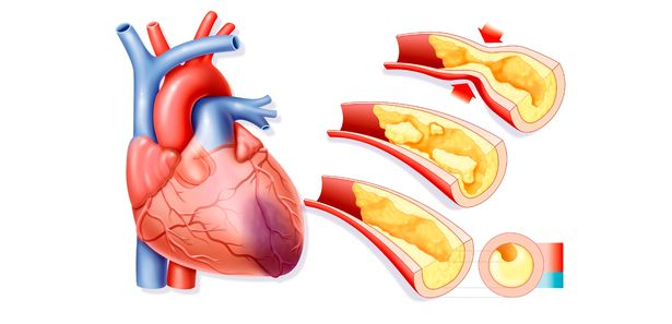 615x297 Heart Disease Risk Revealed Decades Before Symptoms Begin In New