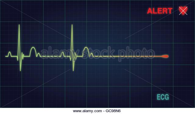 640x376 Heart Monitor Stock Vector Images