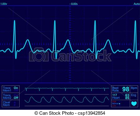 450x372 Heart Monitor Screen With Normal Beat Signal Clipart Vector