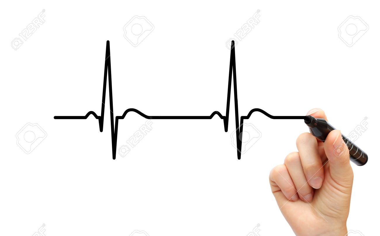 1300x808 Drawing Ecg Stock Photo, Picture And Royalty Free Image. Image