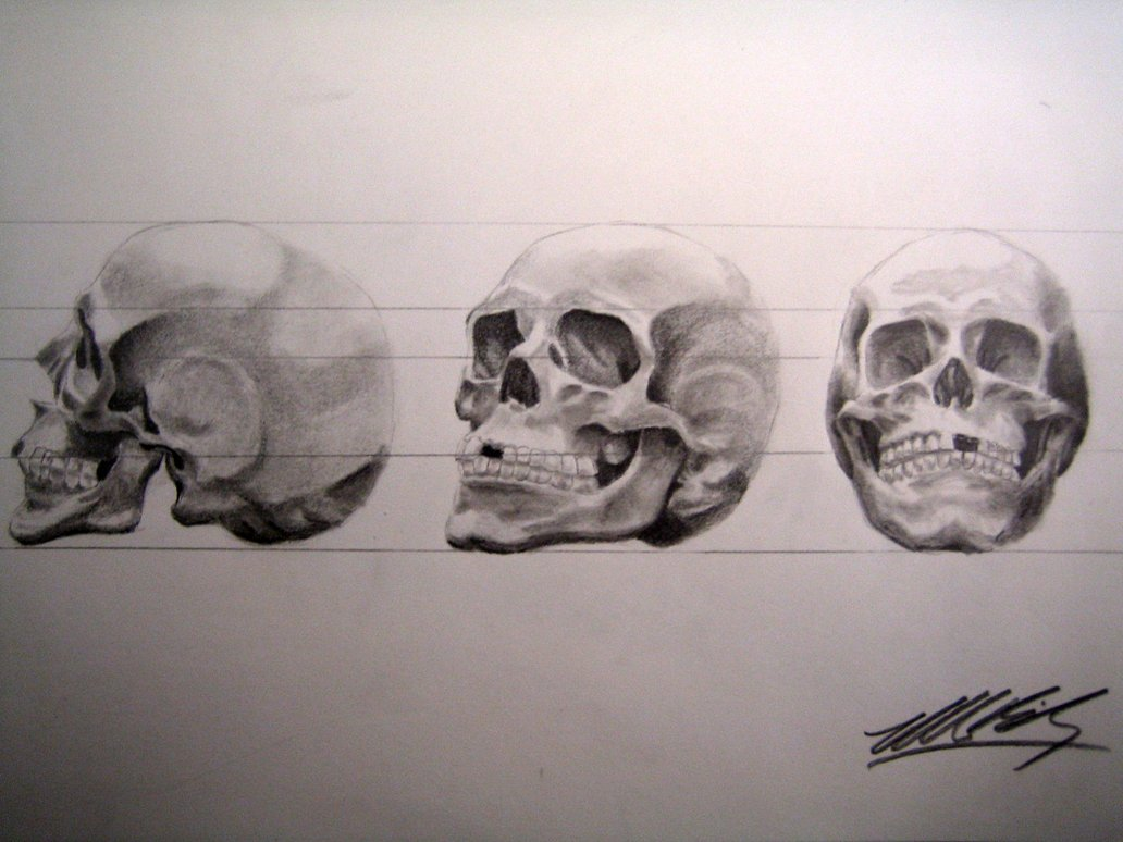 1032x774 Human Skull In 3 Point Turn By Mikebailey1979
