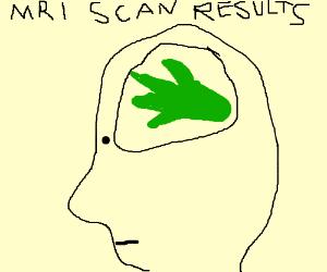 300x250 Kelp For Brains
