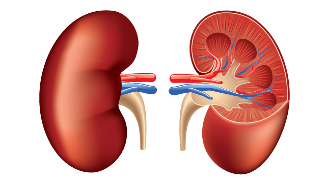 642x361 Renal Cell Cancer Causes, Symptoms, And Diagnosis