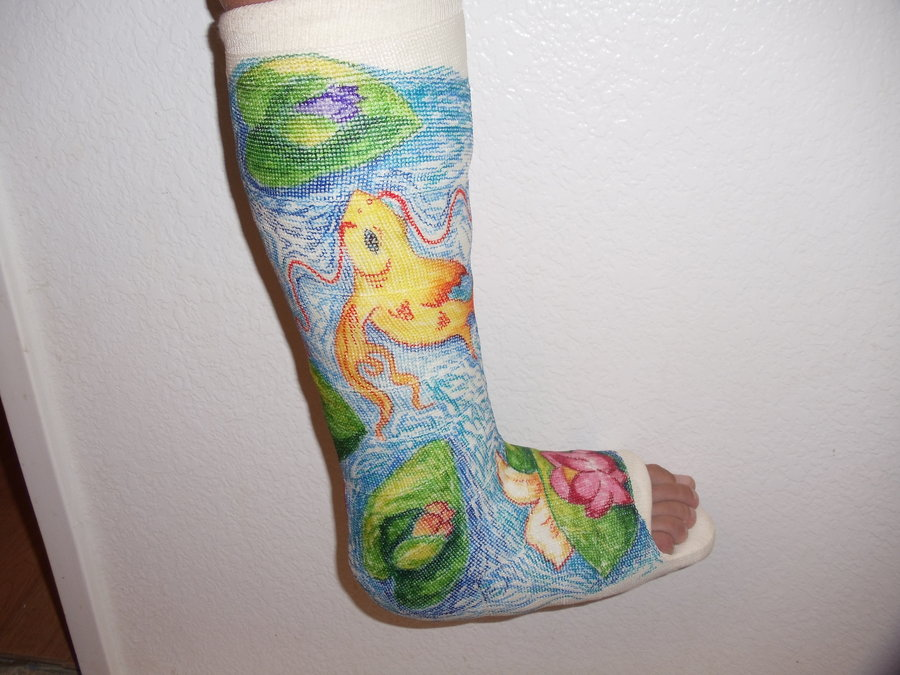900x675 11 Awesomely Decorated Casts Worth A Broken Bone Mental Floss