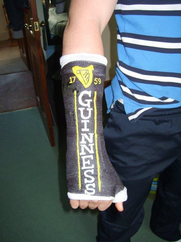 600x800 11 Awesomely Decorated Casts Worth A Broken Bone
