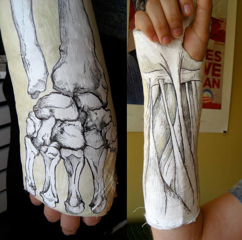500x496 Arm And Leg Cast Artwork Plaster Cast, Leg Cast And Arms