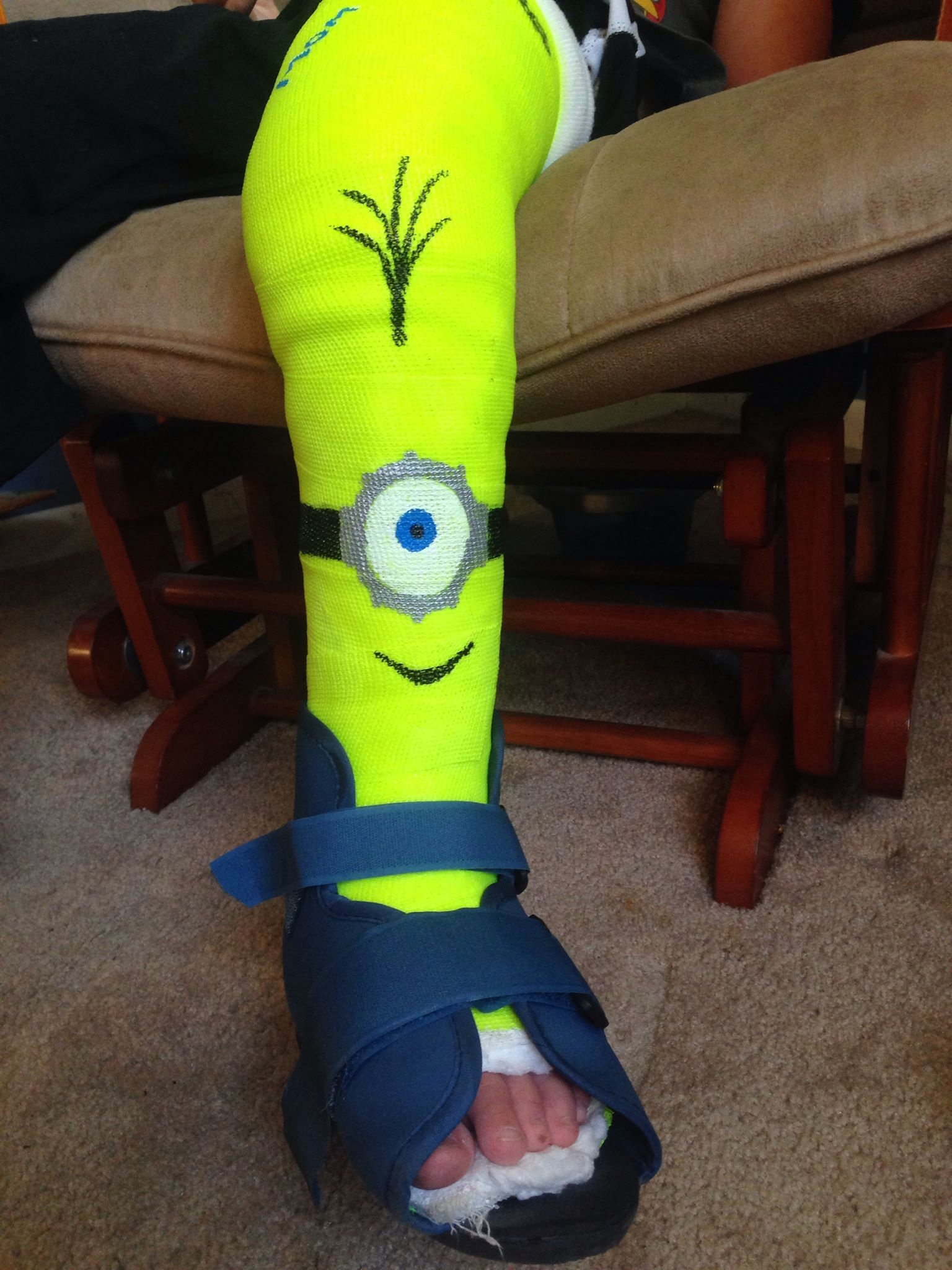 1536x2048 Our Kindergartener Had To Start School In A Full Leg Cast, So My