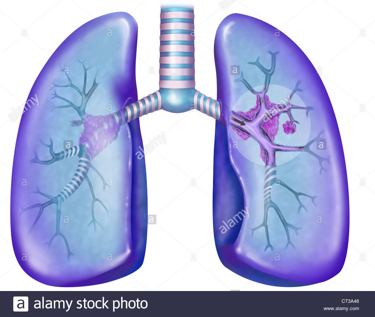 1300x1098 Lung Cancer, Drawing Stock Photo 49246296