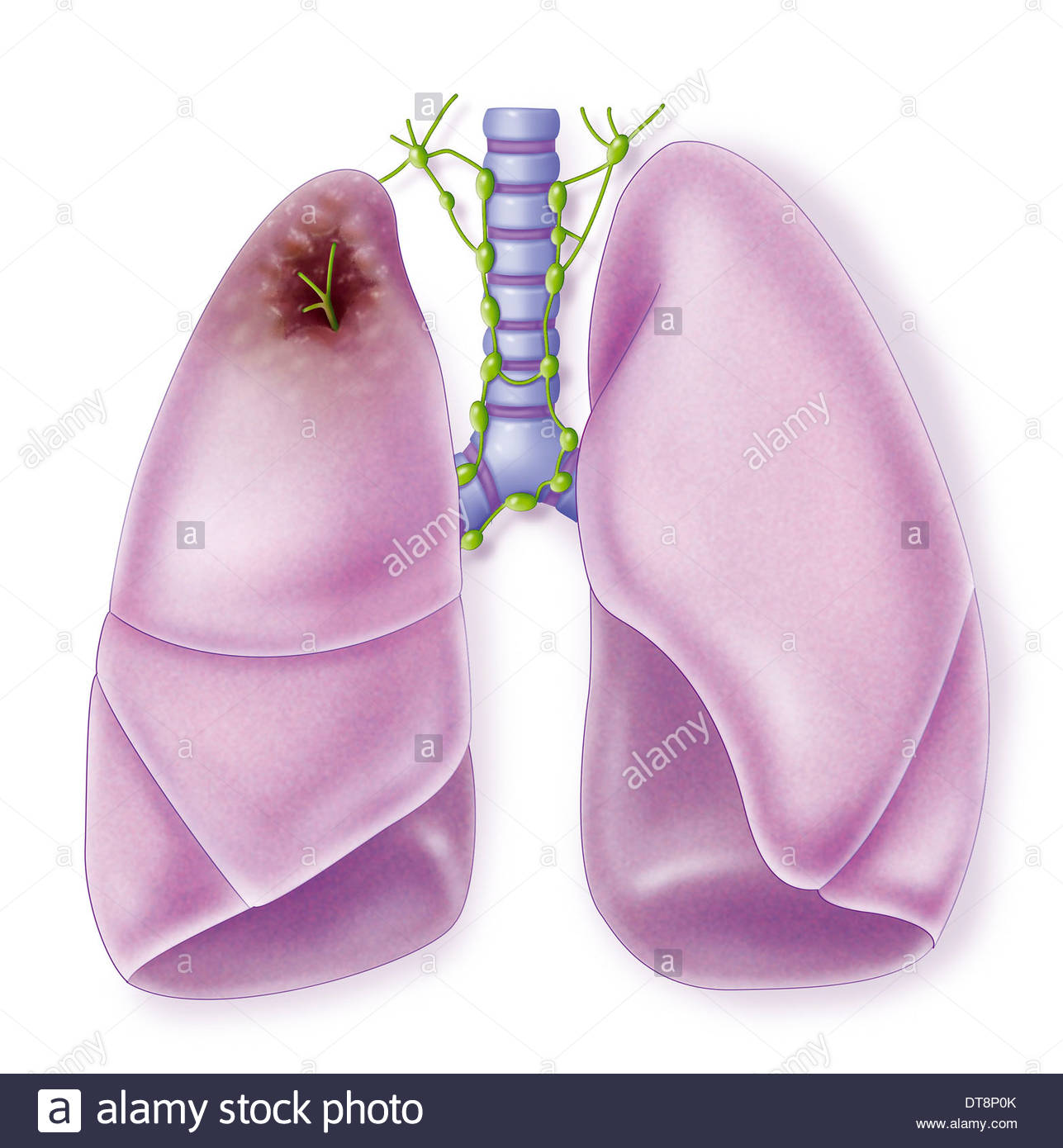 1287x1390 Lung Cancer, Drawing Stock Photo 66575731