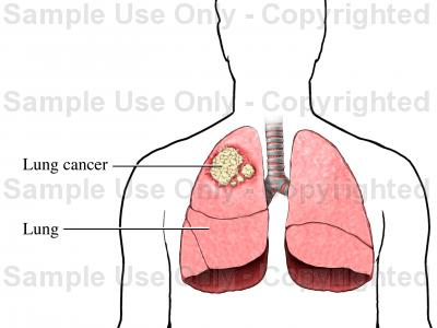 400x300 Lung Cancer