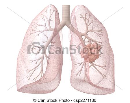 450x357 Lung Cancer. 3d Rendered Illustration Of Lung And Bronchi Stock